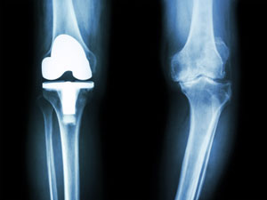 Effects Of Glucosamine, Chondroitin, Or Placebo In Patients With Osteoarthritis Of Hip Or Knee: Network Meta-Analysis
